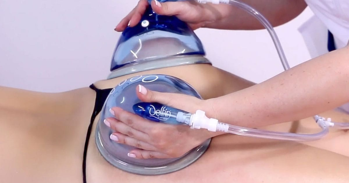 Learning To Use Copas Delfin For Buttocks Enhancements